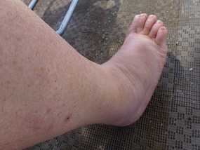 Ooops!! My swollen foot,ankle and leg!